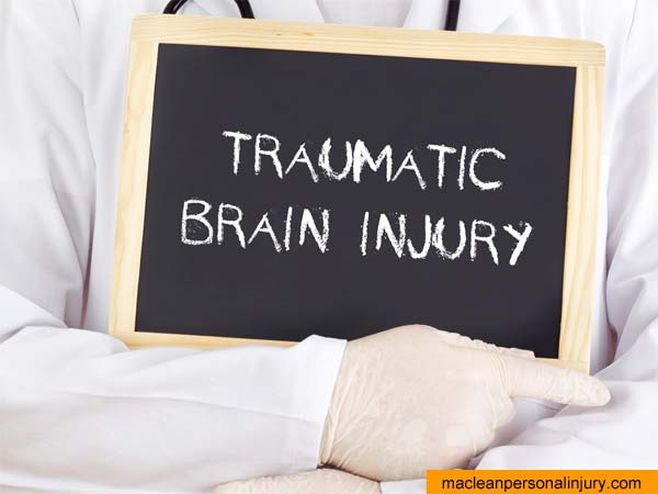 Surrey Brain Injury MTBI lawyers